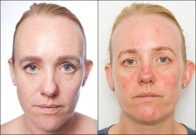 Danosnão retirada de maquiagem